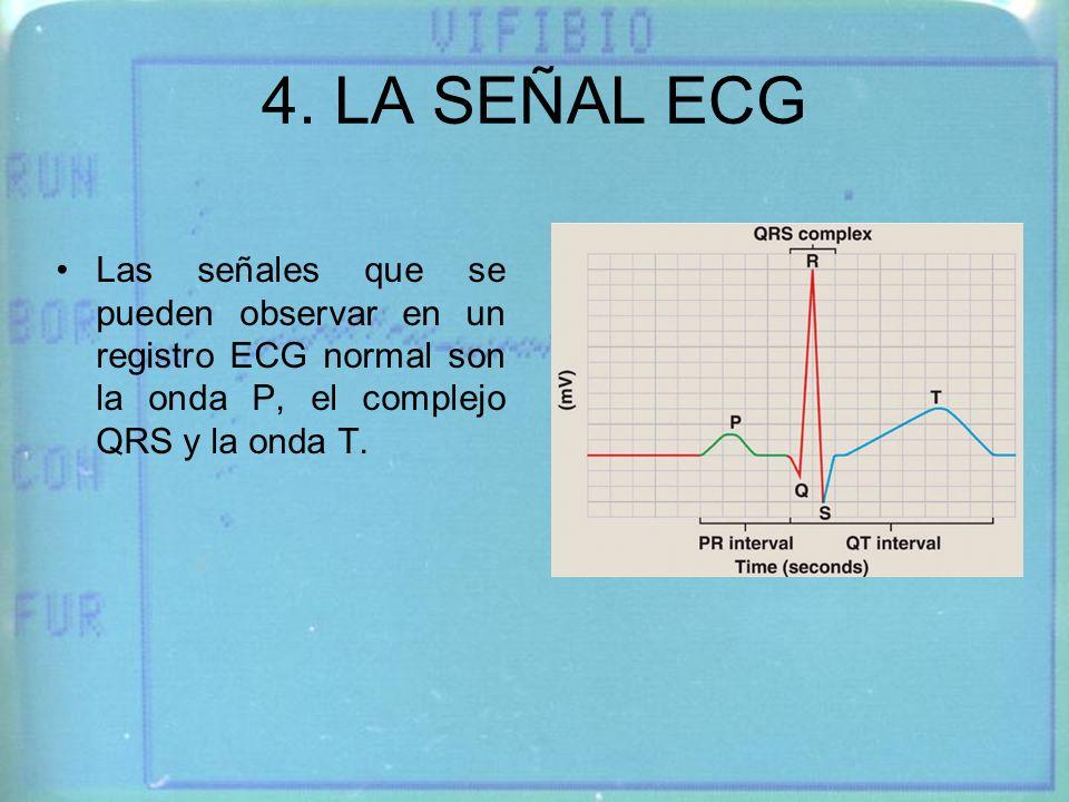 4. LA SEÑAL ECG Las señales que se pueden observar en un registro ECG normal son la onda P, el complejo QRS y la onda T.