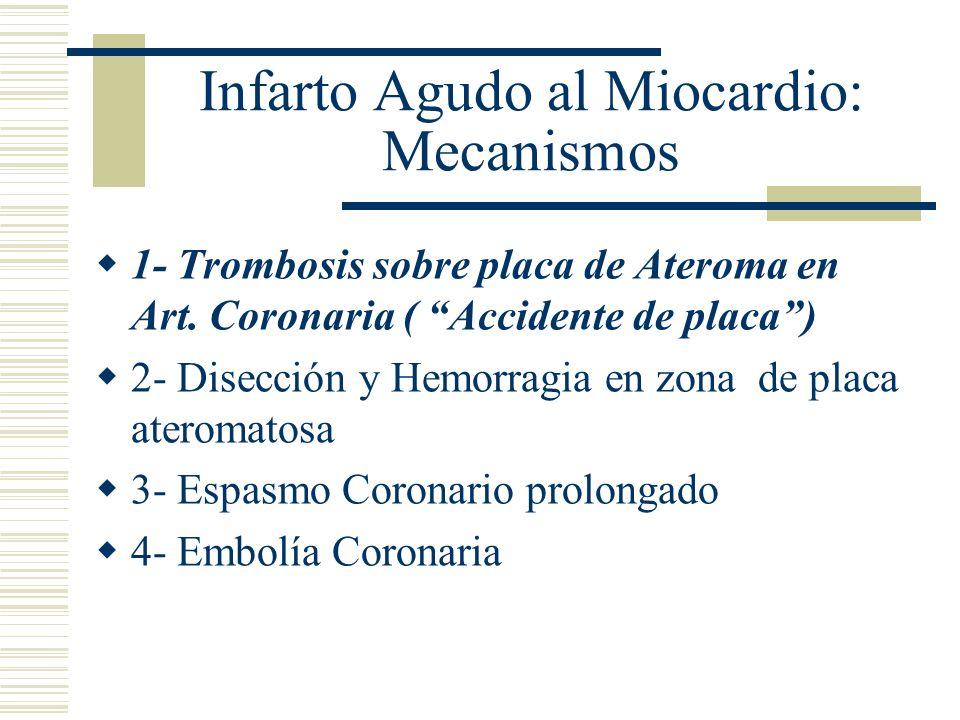 Infarto Agudo al Miocardio: Mecanismos 1- Trombosis sobre placa de Ateroma en Art. Coronaria ( Accidente de placa) 2- Disección y Hemorragia en zona d