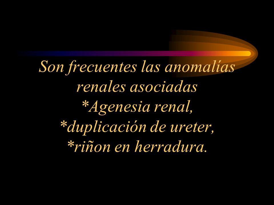 Son frecuentes las anomalías renales asociadas *Agenesia renal, *duplicación de ureter, *riñon en herradura.