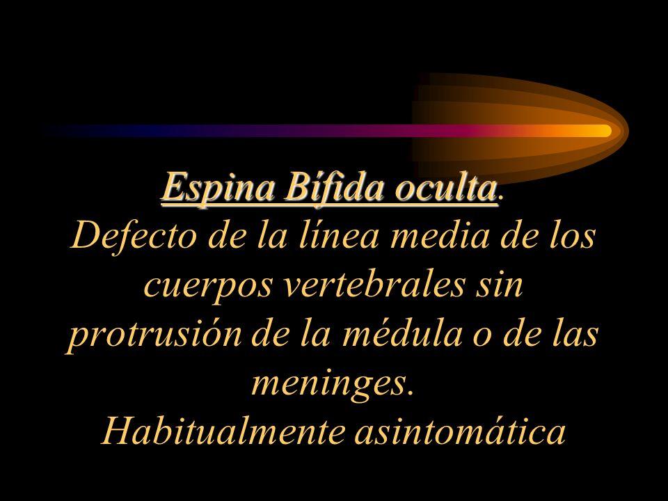 Espina Bífida oculta Espina Bífida oculta. Defecto de la línea media de los cuerpos vertebrales sin protrusión de la médula o de las meninges. Habitua