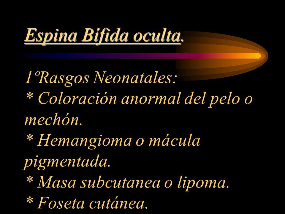 Espina Bífida oculta. Espina Bífida oculta. 1ºRasgos Neonatales: * Coloración anormal del pelo o mechón. * Hemangioma o mácula pigmentada. * Masa subc