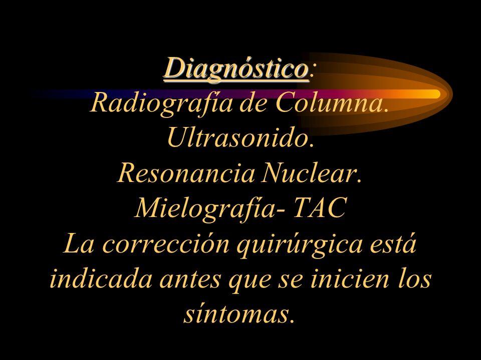 Diagnóstico Diagnóstico: Radiografía de Columna. Ultrasonido. Resonancia Nuclear. Mielografía- TAC La corrección quirúrgica está indicada antes que se