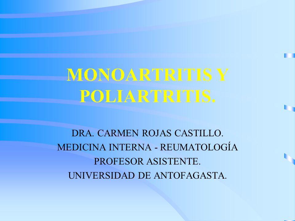 MONOARTRITIS Y POLIARTRITIS. DRA. CARMEN ROJAS CASTILLO. MEDICINA INTERNA - REUMATOLOGÍA PROFESOR ASISTENTE. UNIVERSIDAD DE ANTOFAGASTA.
