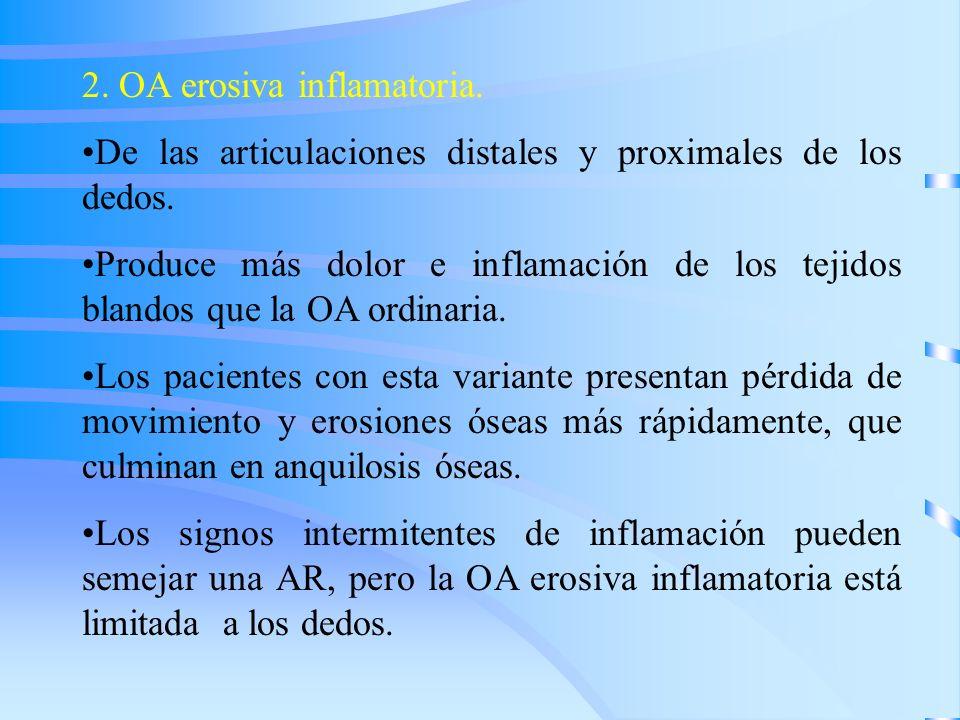 2. OA erosiva inflamatoria. De las articulaciones distales y proximales de los dedos. Produce más dolor e inflamación de los tejidos blandos que la OA