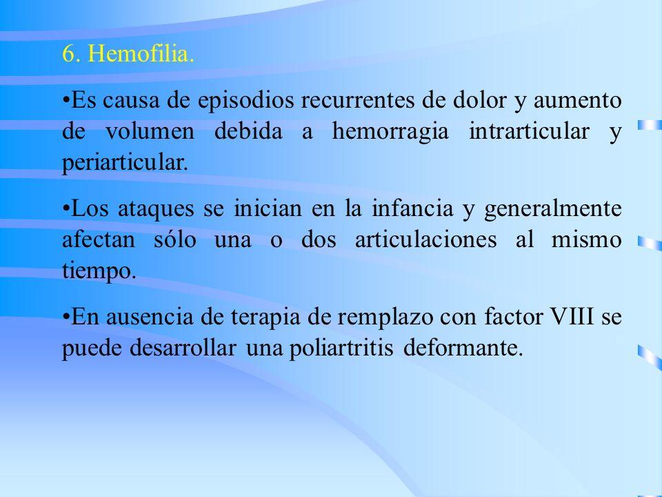 6. Hemofilia. Es causa de episodios recurrentes de dolor y aumento de volumen debida a hemorragia intrarticular y periarticular. Los ataques se inicia