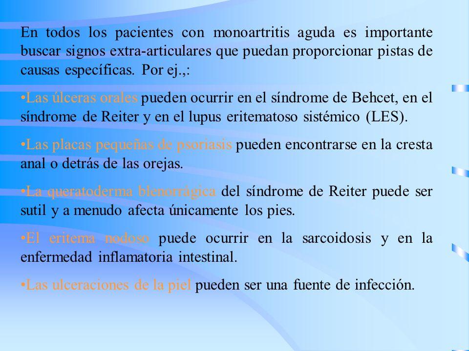 En todos los pacientes con monoartritis aguda es importante buscar signos extra-articulares que puedan proporcionar pistas de causas específicas. Por