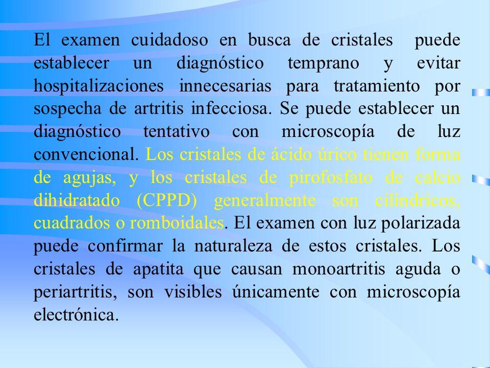 El examen cuidadoso en busca de cristales puede establecer un diagnóstico temprano y evitar hospitalizaciones innecesarias para tratamiento por sospec