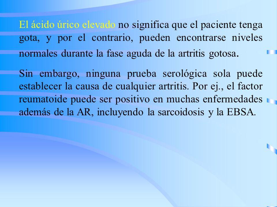 El ácido úrico elevado no significa que el paciente tenga gota, y por el contrario, pueden encontrarse niveles normales durante la fase aguda de la ar