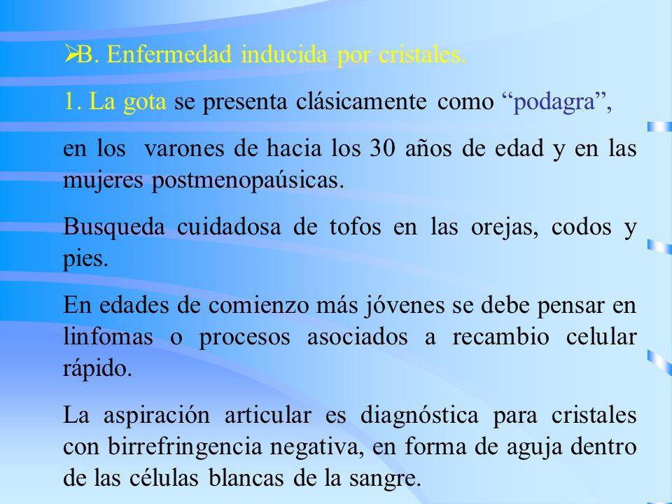 B. Enfermedad inducida por cristales. 1. La gota se presenta clásicamente como podagra, en los varones de hacia los 30 años de edad y en las mujeres p
