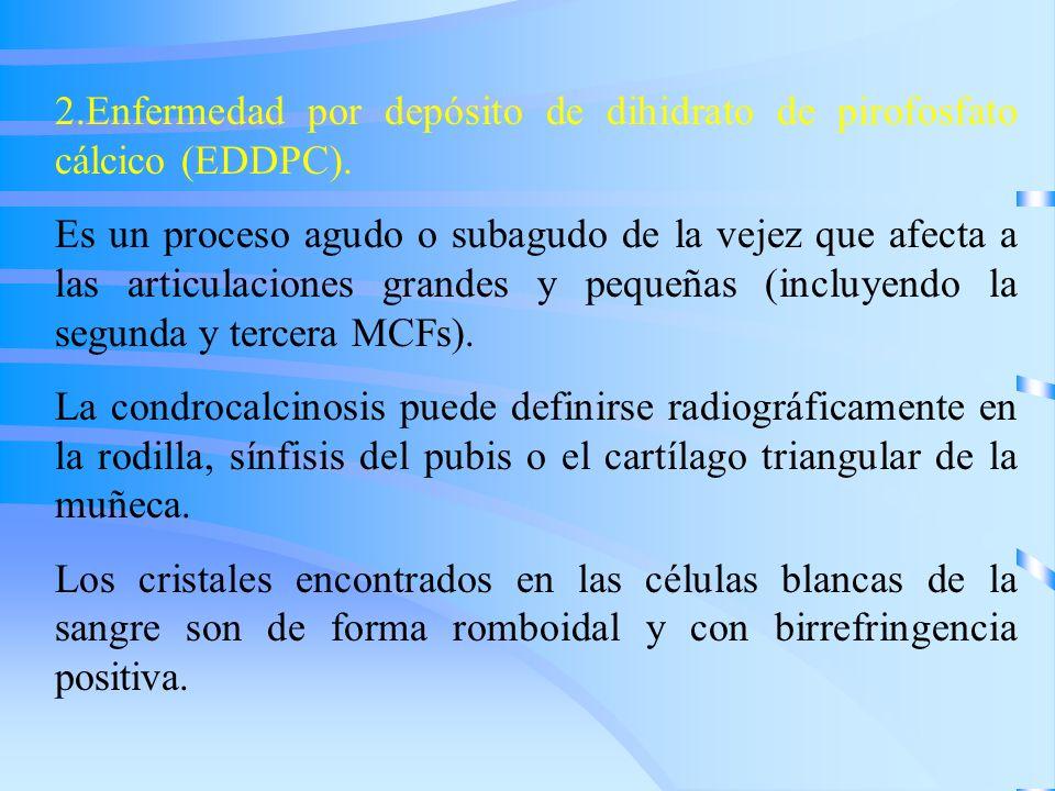 2.Enfermedad por depósito de dihidrato de pirofosfato cálcico (EDDPC). Es un proceso agudo o subagudo de la vejez que afecta a las articulaciones gran