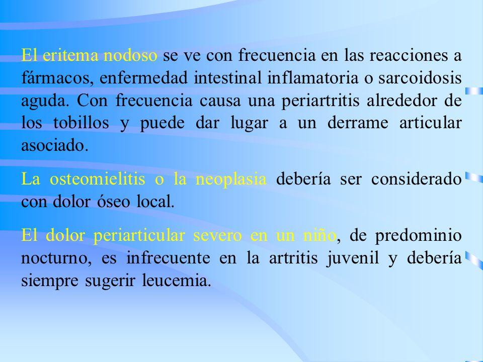 El eritema nodoso se ve con frecuencia en las reacciones a fármacos, enfermedad intestinal inflamatoria o sarcoidosis aguda. Con frecuencia causa una