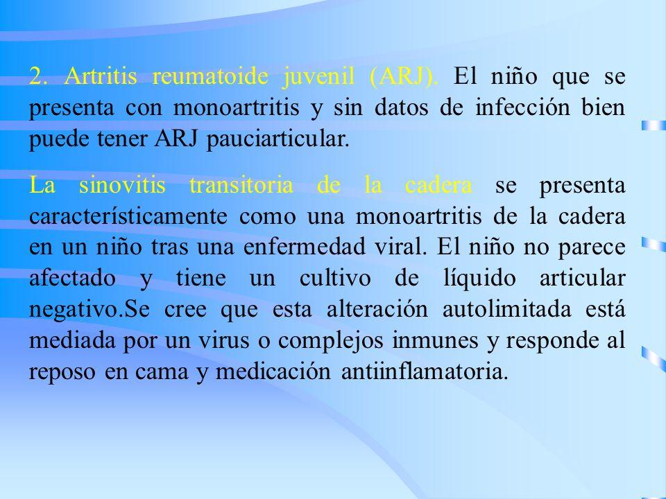 2. Artritis reumatoide juvenil (ARJ). El niño que se presenta con monoartritis y sin datos de infección bien puede tener ARJ pauciarticular. La sinovi