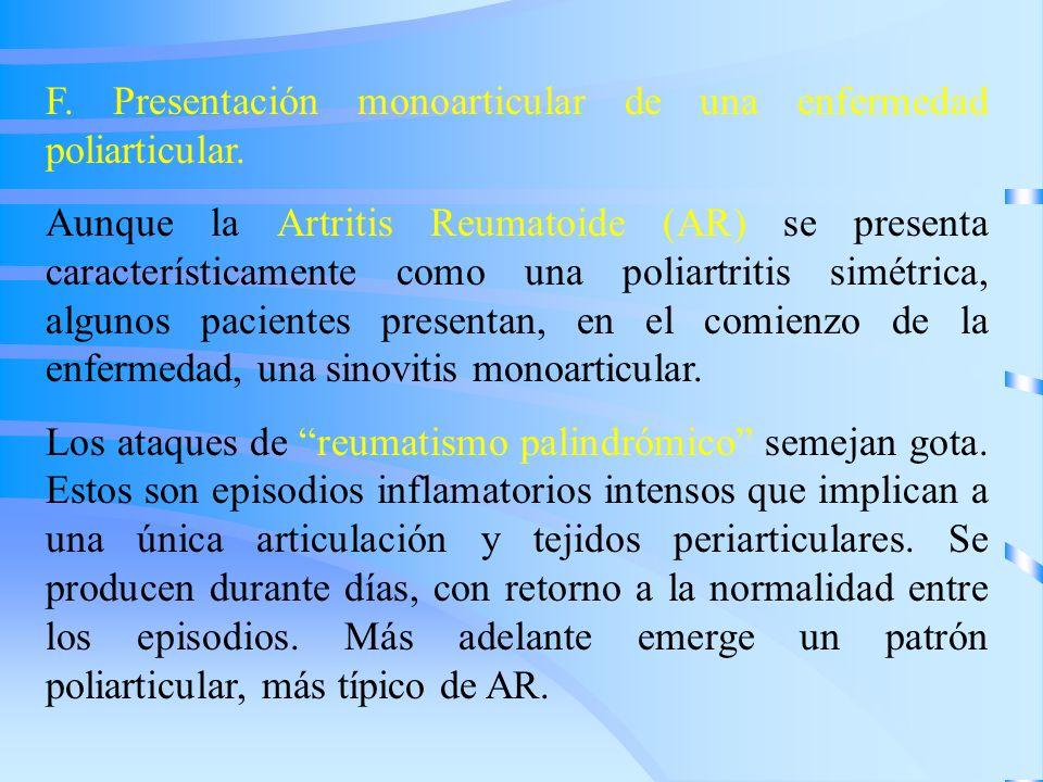 F. Presentación monoarticular de una enfermedad poliarticular. Aunque la Artritis Reumatoide (AR) se presenta característicamente como una poliartriti