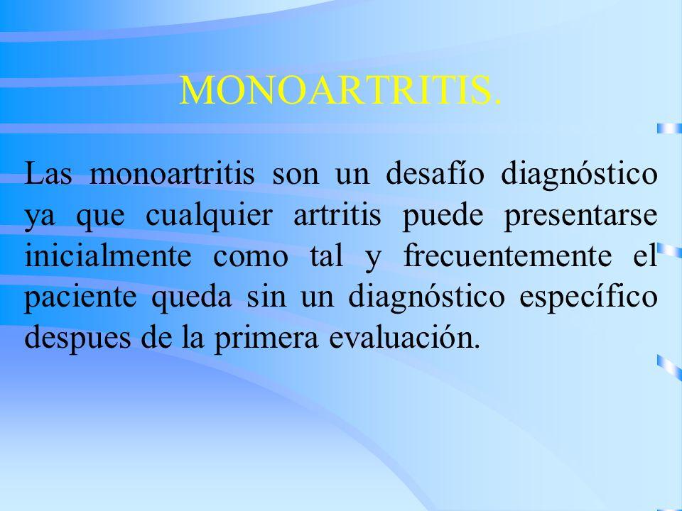 MONOARTRITIS. Las monoartritis son un desafío diagnóstico ya que cualquier artritis puede presentarse inicialmente como tal y frecuentemente el pacien