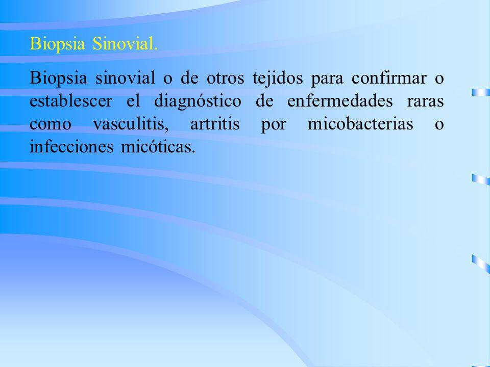 Biopsia Sinovial. Biopsia sinovial o de otros tejidos para confirmar o establescer el diagnóstico de enfermedades raras como vasculitis, artritis por