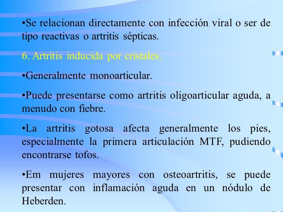 Se relacionan directamente con infección viral o ser de tipo reactivas o artritis sépticas. 6. Artritis inducida por cristales. Generalmente monoartic