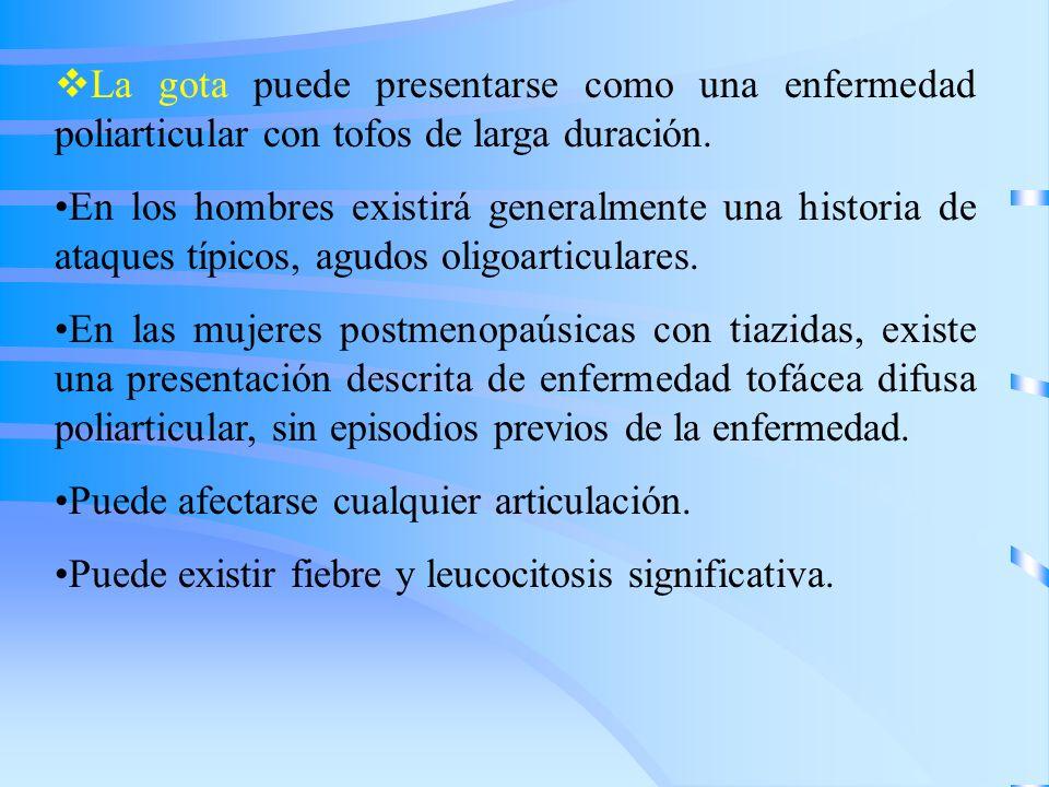 La gota puede presentarse como una enfermedad poliarticular con tofos de larga duración. En los hombres existirá generalmente una historia de ataques