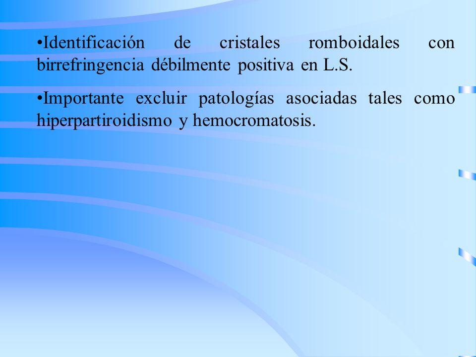 Identificación de cristales romboidales con birrefringencia débilmente positiva en L.S. Importante excluir patologías asociadas tales como hiperpartir
