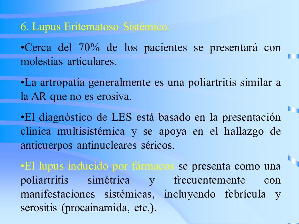 6. Lupus Eritematoso Sistémico. Cerca del 70% de los pacientes se presentará con molestias articulares. La artropatía generalmente es una poliartritis