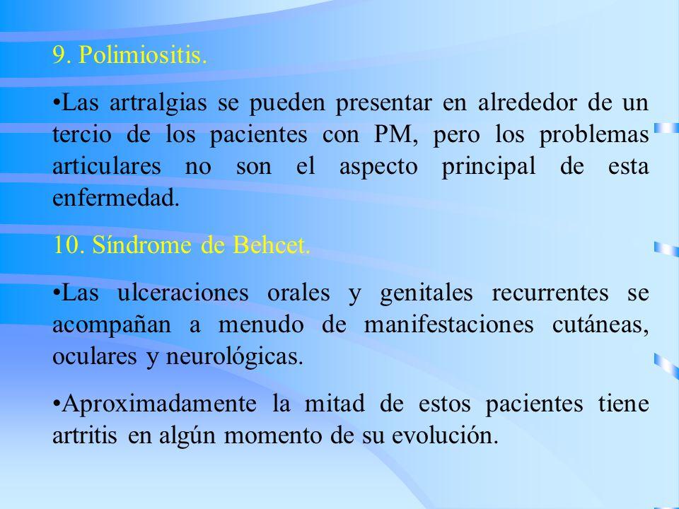9. Polimiositis. Las artralgias se pueden presentar en alrededor de un tercio de los pacientes con PM, pero los problemas articulares no son el aspect