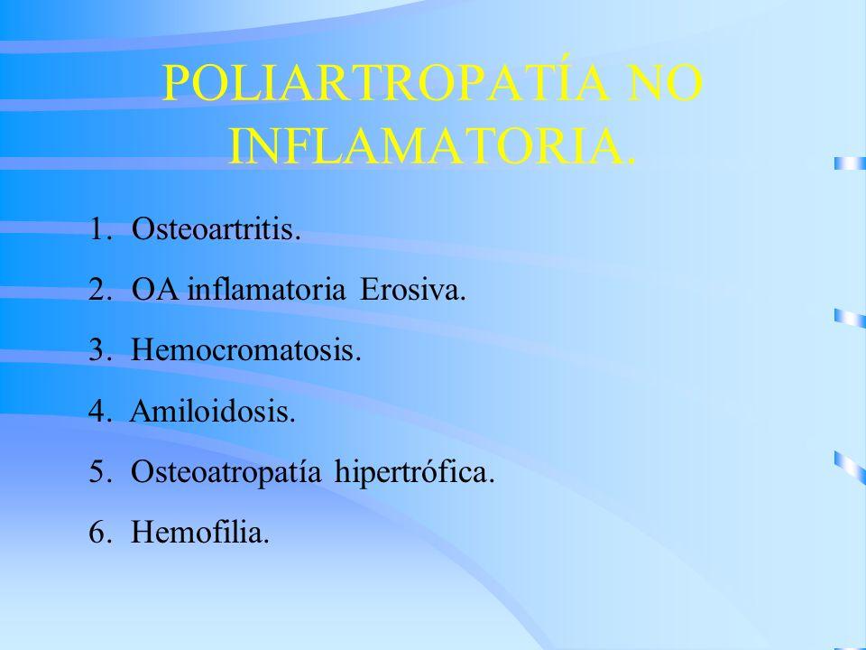POLIARTROPATÍA NO INFLAMATORIA. 1.Osteoartritis. 2.OA inflamatoria Erosiva. 3. Hemocromatosis. 4. Amiloidosis. 5. Osteoatropatía hipertrófica. 6. Hemo