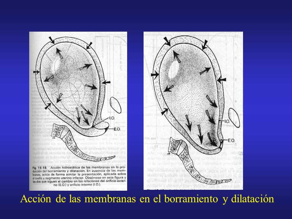 Acción hidróstatica de las membranas con dilatación cervical completa