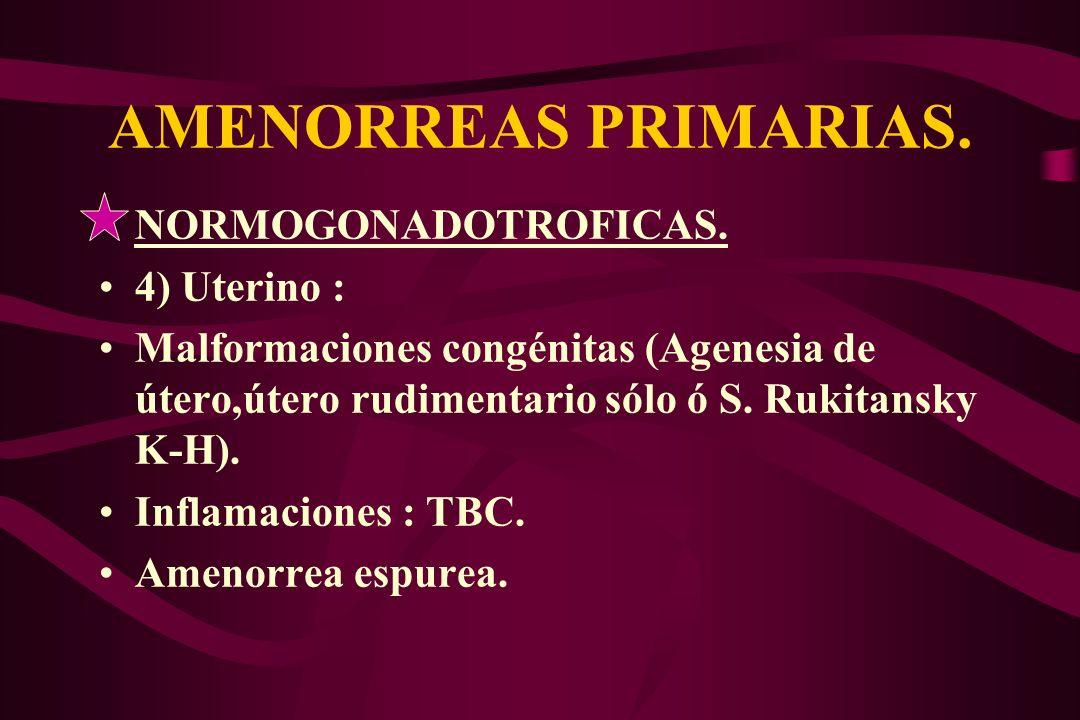 AMENORREAS PRIMARIAS. NORMOGONADOTROFICAS. 4) Uterino : Malformaciones congénitas (Agenesia de útero,útero rudimentario sólo ó S. Rukitansky K-H). Inf
