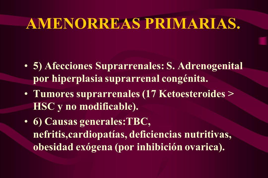 AMENORREAS PRIMARIAS. 5) Afecciones Suprarrenales: S. Adrenogenital por hiperplasia suprarrenal congénita. Tumores suprarrenales (17 Ketoesteroides >