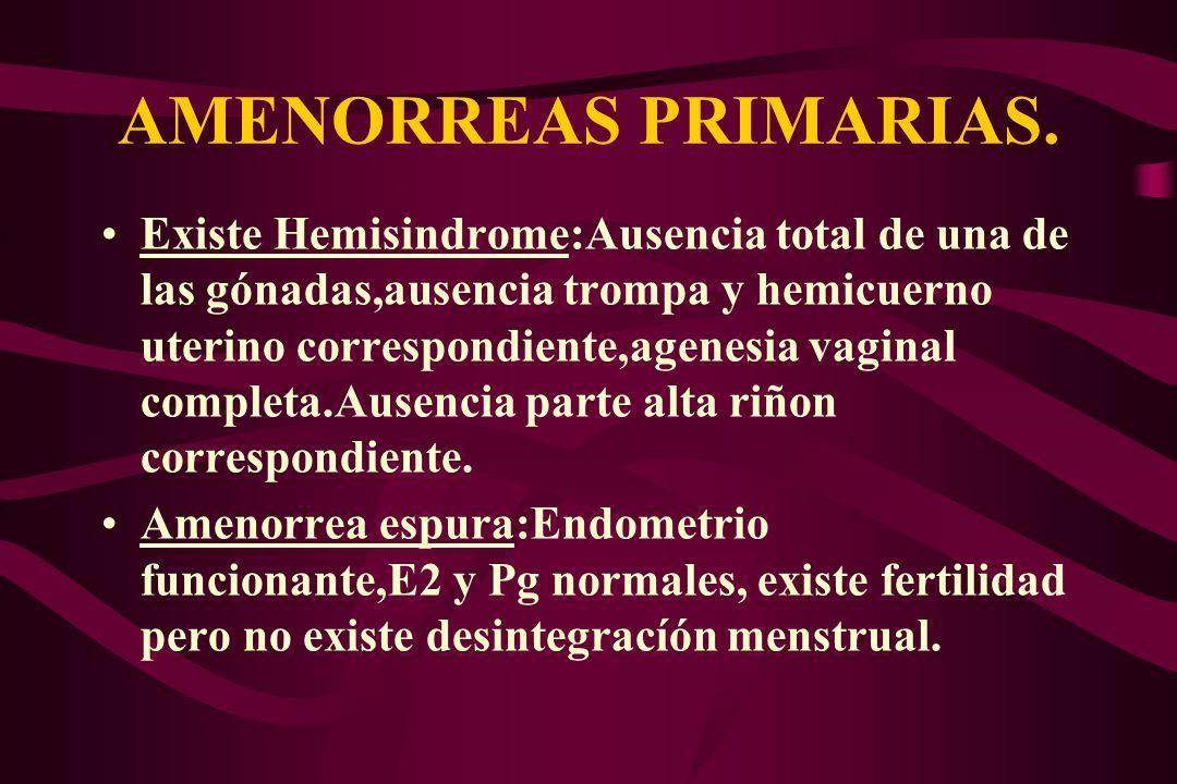 AMENORREAS PRIMARIAS. Existe Hemisindrome:Ausencia total de una de las gónadas,ausencia trompa y hemicuerno uterino correspondiente,agenesia vaginal c