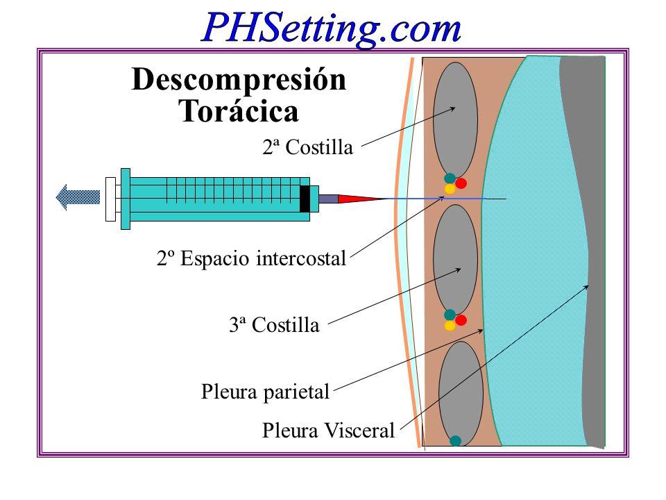 2º Espacio intercostal 2ª Costilla 3ª Costilla Pleura parietal Pleura Visceral Descompresión Torácica