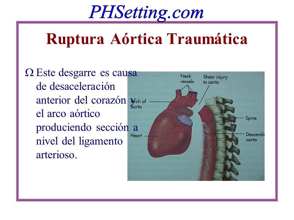 Ruptura Aórtica Traumática Este desgarre es causa de desaceleración anterior del corazón y el arco aórtico produciendo sección a nivel del ligamento a