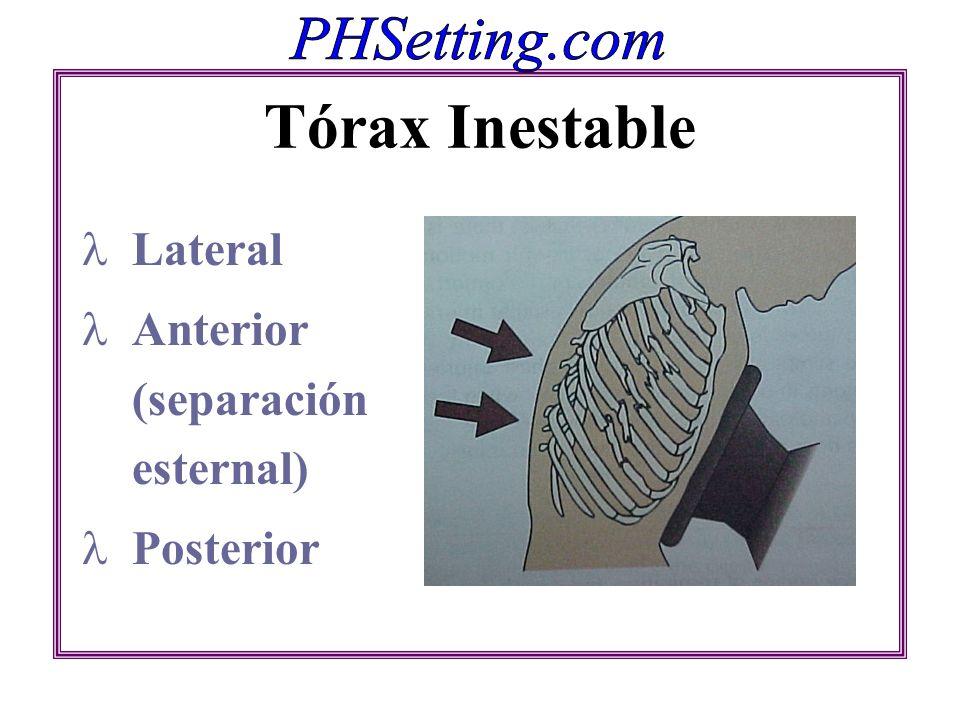 Tórax Inestable Lateral Anterior (separación esternal) Posterior