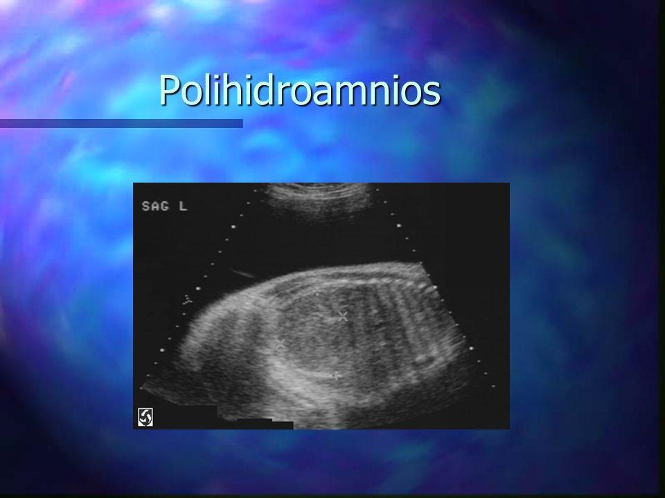 Polihidroamnios n Definido como el Volumen de LA mayor o igual a 2000 ml.