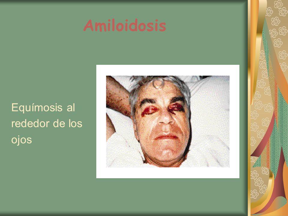 Amiloidosis Equímosis al rededor de los ojos