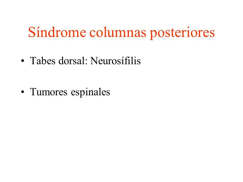 Síndrome columnas posteriores Tabes dorsal: Neurosífilis Tumores espinales