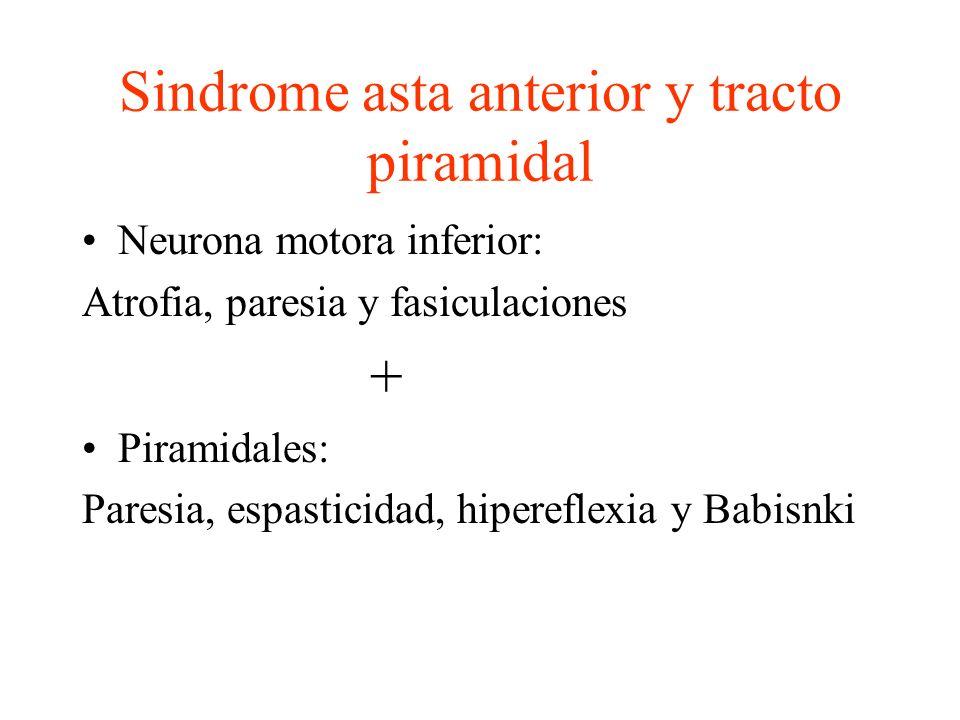 Sindrome asta anterior y tracto piramidal Neurona motora inferior: Atrofia, paresia y fasiculaciones + Piramidales: Paresia, espasticidad, hipereflexi