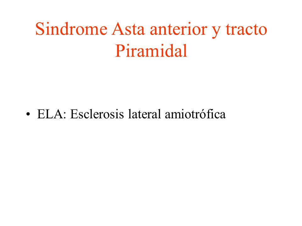Sindrome Asta anterior y tracto Piramidal ELA: Esclerosis lateral amiotrófica