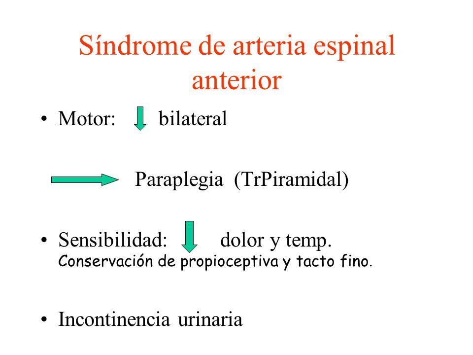Síndrome de arteria espinal anterior Motor: bilateral Paraplegia (TrPiramidal) Sensibilidad: dolor y temp. Conservación de propioceptiva y tacto fino.