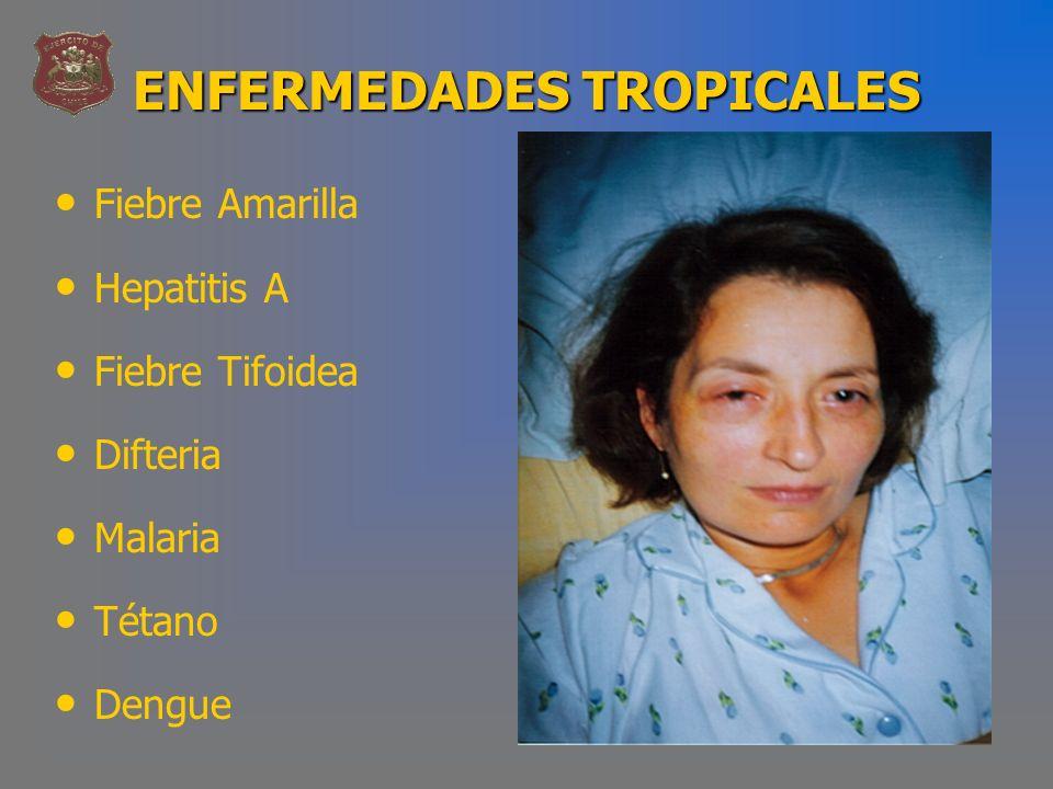 ENFERMEDADES TROPICALES Fiebre Amarilla Hepatitis A Fiebre Tifoidea Difteria Malaria Tétano Dengue