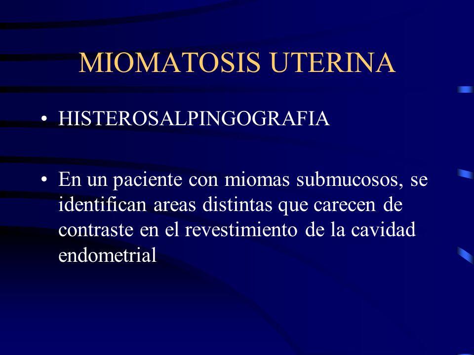 MIOMATOSIS UTERINA HISTEROSALPINGOGRAFIA En un paciente con miomas submucosos, se identifican areas distintas que carecen de contraste en el revestimi