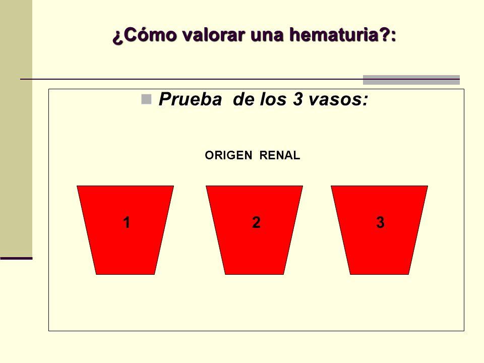 ¿Cómo valorar una hematuria?: Prueba de los 3 vasos: Prueba de los 3 vasos: ORIGEN RENAL 1 23
