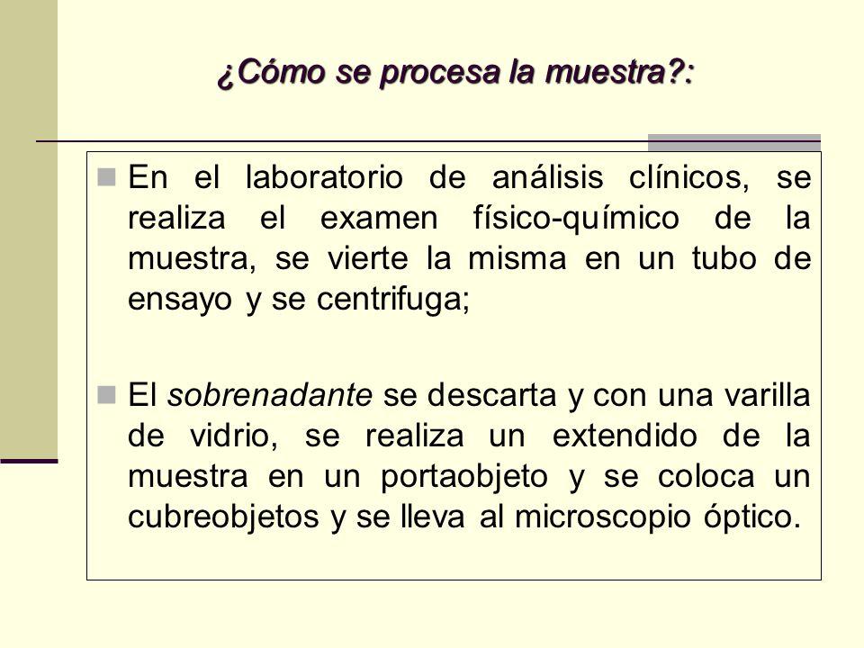 ¿Cómo se procesa la muestra?: En el laboratorio de análisis clínicos, se realiza el examen físico-químico de la muestra, se vierte la misma en un tubo