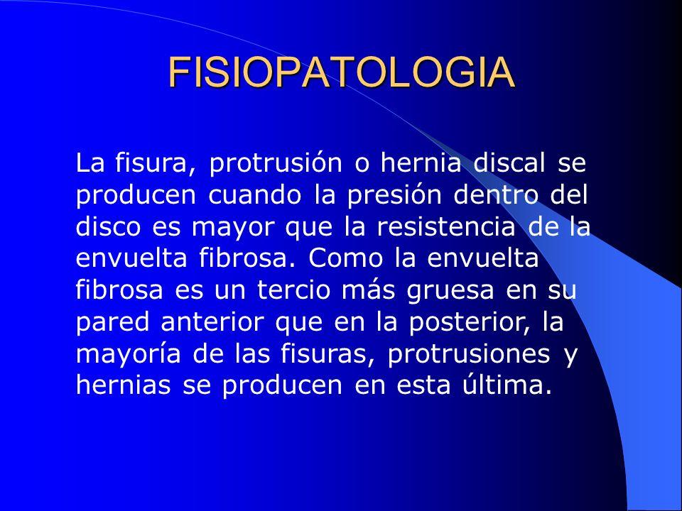FISIOPATOLOGIA La fisura, protrusión o hernia discal se producen cuando la presión dentro del disco es mayor que la resistencia de la envuelta fibrosa.