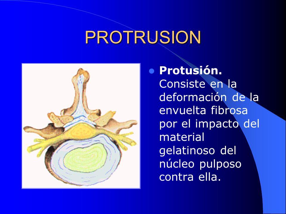 PROTRUSION Protusión.