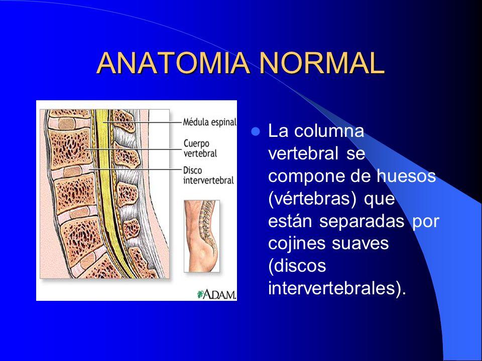 ANATOMIA NORMAL La columna vertebral se compone de huesos (vértebras) que están separadas por cojines suaves (discos intervertebrales).