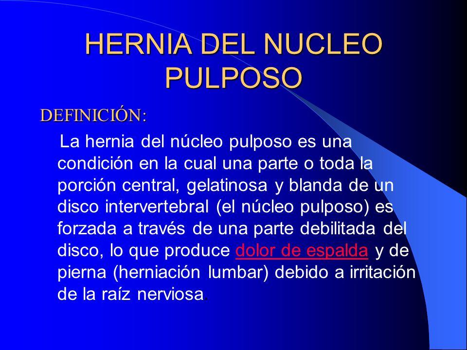 HERNIA DEL NUCLEO PULPOSO DEFINICIÓN: La hernia del núcleo pulposo es una condición en la cual una parte o toda la porción central, gelatinosa y blanda de un disco intervertebral (el núcleo pulposo) es forzada a través de una parte debilitada del disco, lo que produce dolor de espalda y de pierna (herniación lumbar) debido a irritación de la raíz nerviosa.dolor de espalda