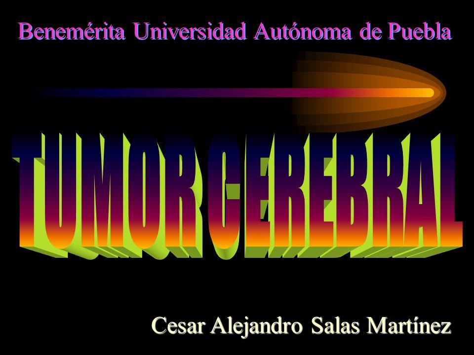 Benemérita Universidad Autónoma de Puebla Cesar Alejandro Salas Martínez