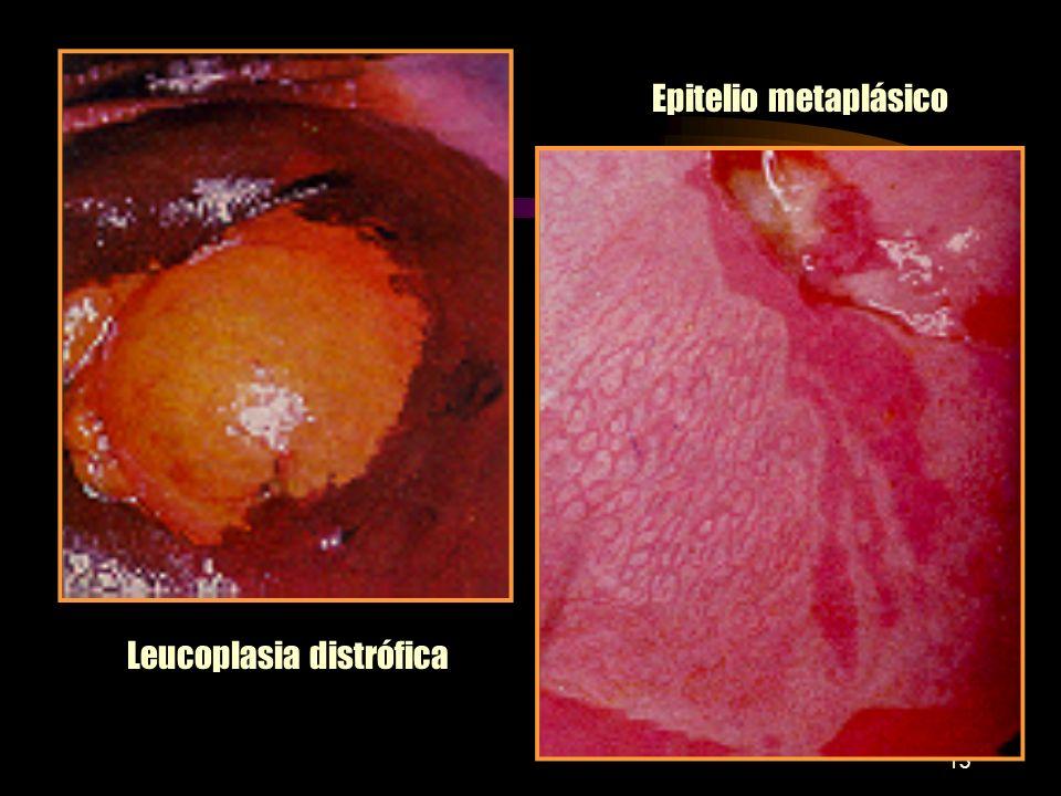 12 MACRO Y MICROSCOPIA DE LA NIE Aspecto colposcópico Variaciones de lo normal: pólipos, inflamación, cambio atrófico. Aspecto punteado rojizo: capila