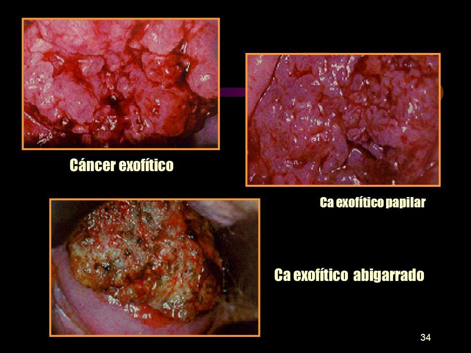33 TUMORES MALIGNOS DE CUELLO UTERINO I Tumores epiteliales: A) Carcinoma de células escamosas: 1. No queratinizante de células Grandes. 2. Queratiniz