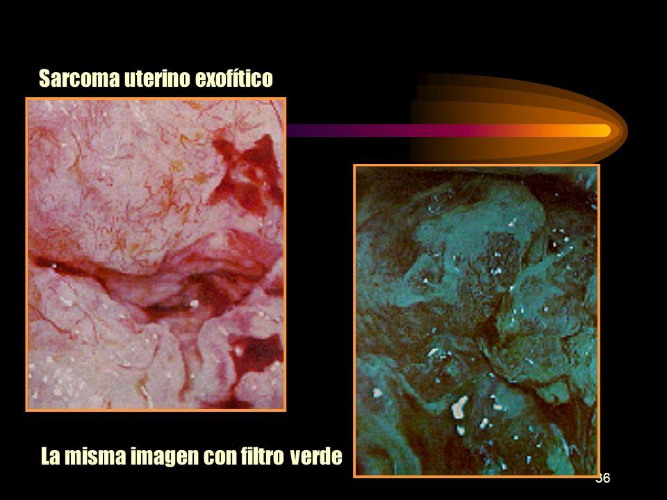 35 Ca endofítico Ca ulcerado hemorrágico Ca ulcerado periorificial